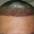 haartransplantation_pat_b3